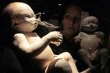 Giới trí thức Úc công bố thư ngỏ phản đối triển lãm thi thể người